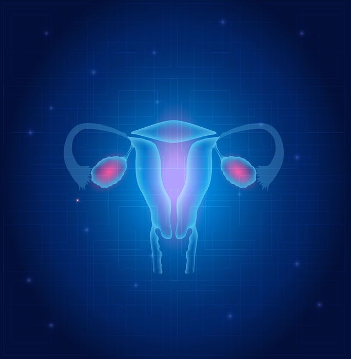 Lee más sobre el artículo Endometriosis, ¿qué es y cómo te afecta?
