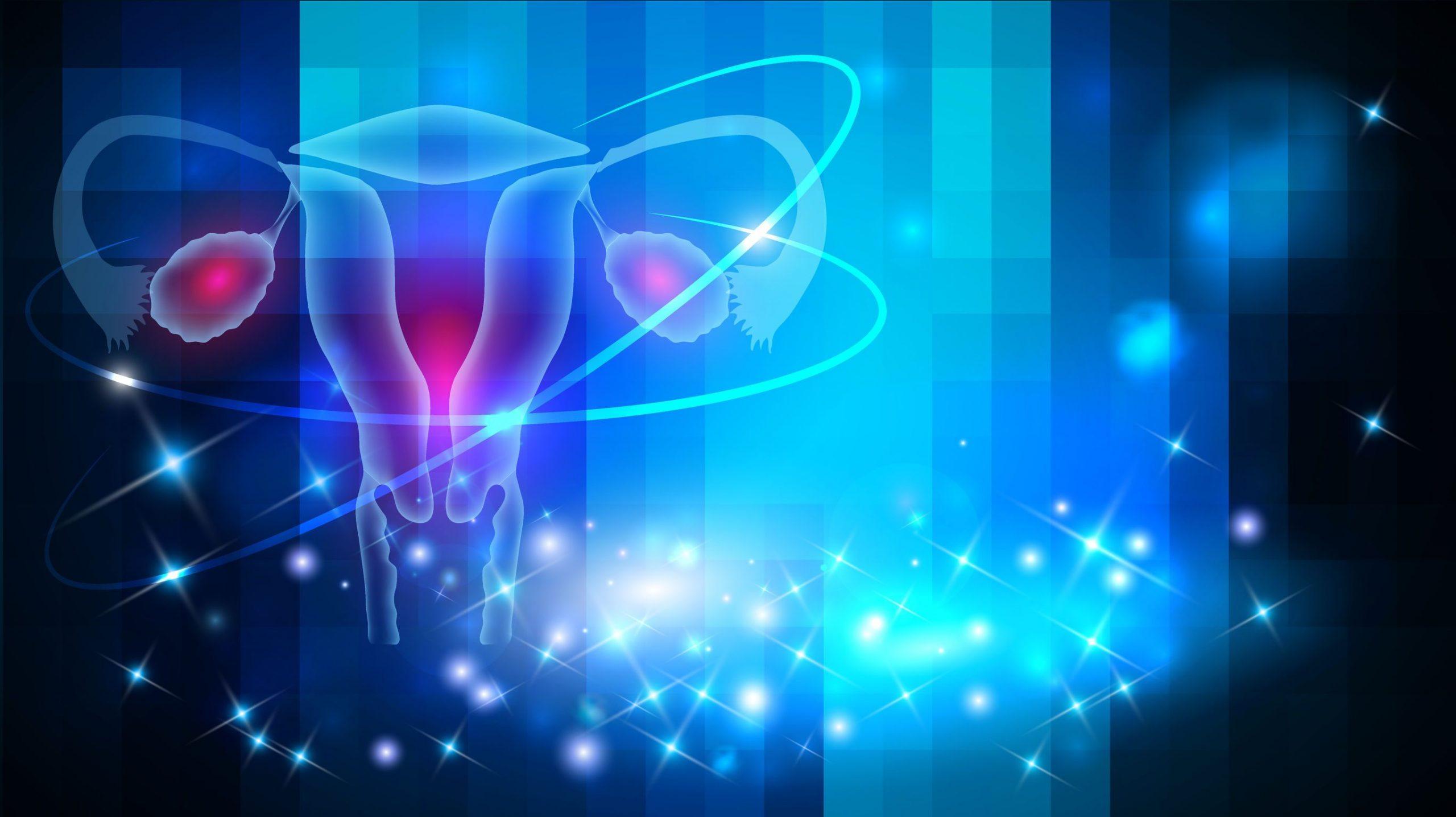 Lee más sobre el artículo Ovarios poliquísticos. ¿Cuales son los síntomas?