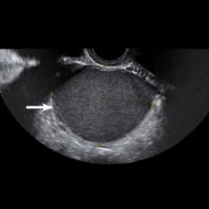 ecografia-pamplona-embarazo
